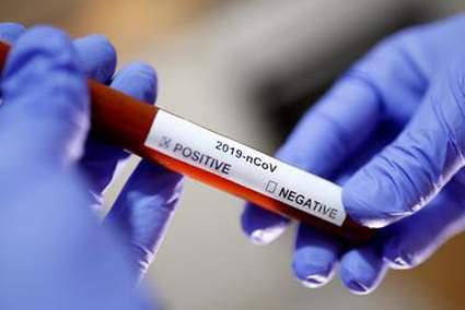 Esto es cuando se espera que cada estado alcance el pico de muertes por coronavirus a partir del jueves 5