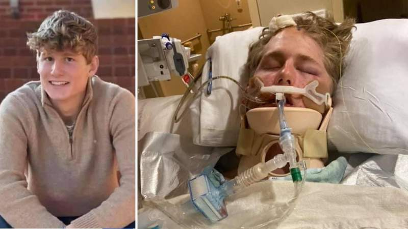 Prayer vigil held for Tompkins High School student injured in violent crash
